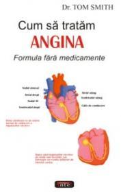 Cum sa tratam angina. Formula fara medicamente - Tom Smith