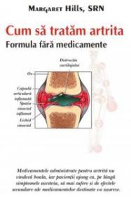 Cum sa tratam artrita - Margaret Hills, Srn